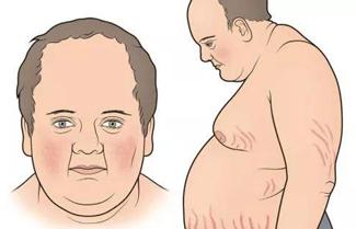 患有脂溢性皮炎都有哪些表现