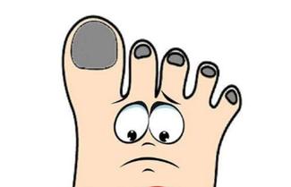 南京灰指甲治疗哪里好